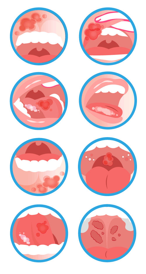 Oral-Disease-infographic-500pxW